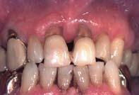Endodontie et parodontie