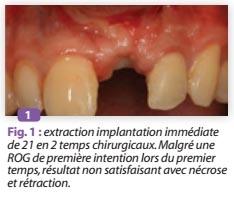 Le deuxième temps chirurgical en implantologie