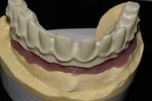 Implantologie assistée par ordinateur : traitement d'un édentement complet maxillaire à l'aide du système NobelGuide