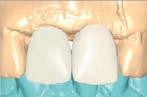 Le pilier numérique en implantologie