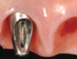 Papilles et bridge complet sur implants