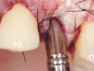 Protocole de mise en temporisation immediate chez l'édenté unitaire au maxillaire