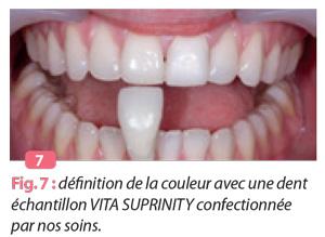 échantillon-VITA-SUPRINITY