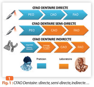 CFAO-dentaire