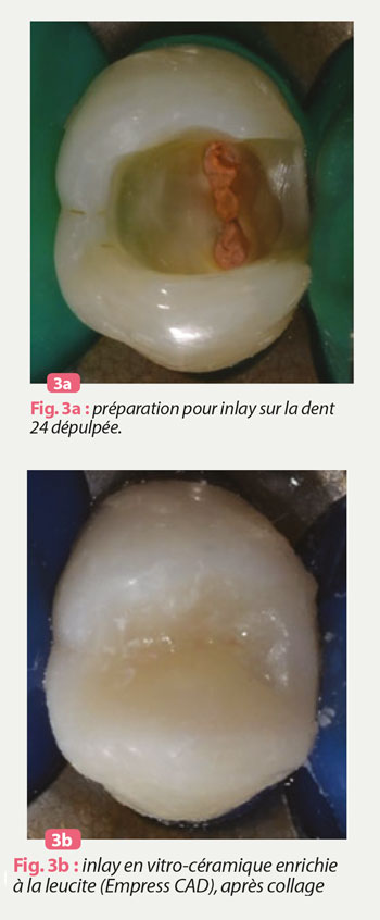 collage-photopolymerisation-sous-glycerine