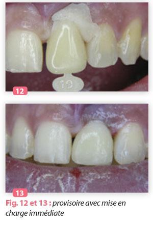 dent-provisoire-avec-mise-en-charge-immédiate