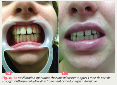 froggymouth-et-orthodontie