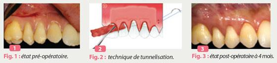greffe-de-tissu-conjonctif-par-tunnelisation