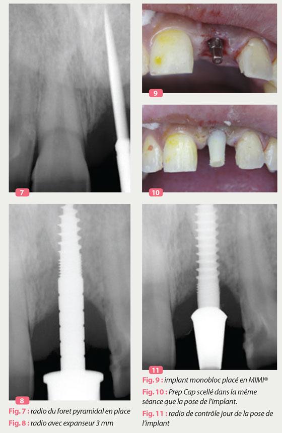 implant-monobloc-placé-en-mimi