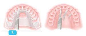 incision-decalee-en-palatin