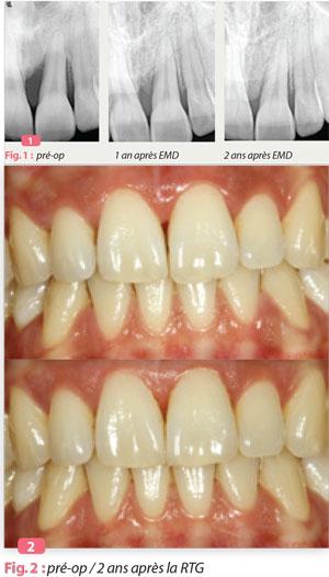 innovations-parodontologie