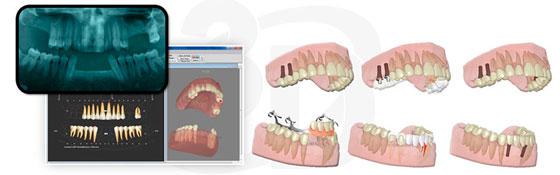 logociel-3d-dental-master