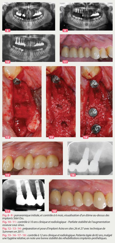 dome-implants-steri-oss
