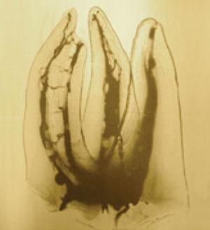molaire-maxillaire