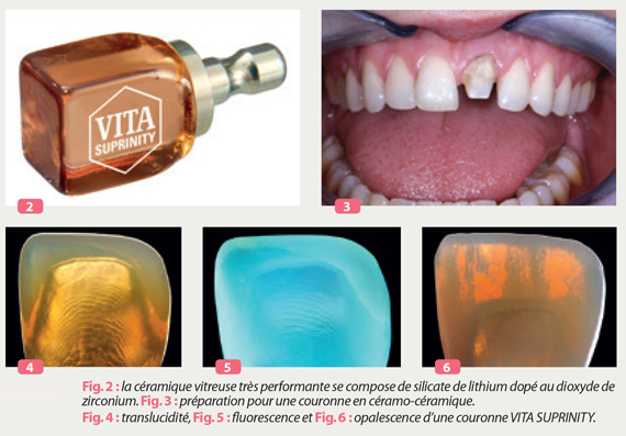 opalescence-couronne-VITA-SUPRINITY