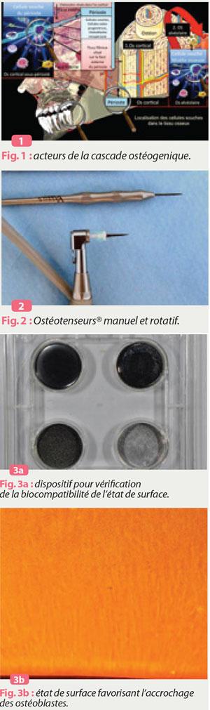 osteotenseurs