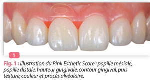 pink-esthetic-score