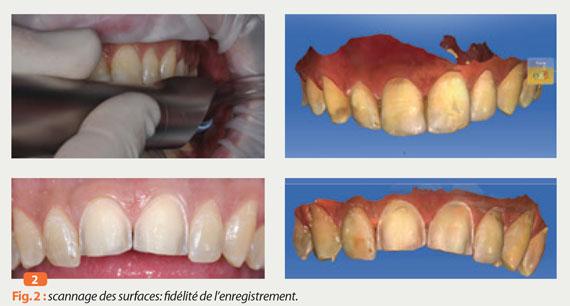 scannage-des-surfaces-des-dents