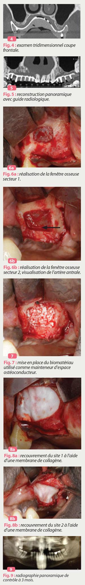 sinus-lift-piezochirurgie
