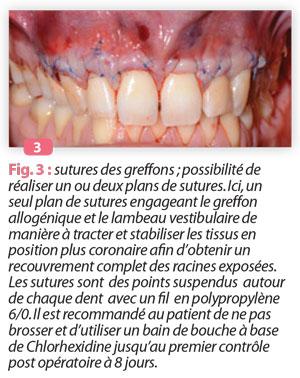 sutures-des-greffons