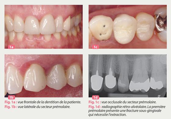 temporisation-immediate-edente-unitaire-au-maxillaire