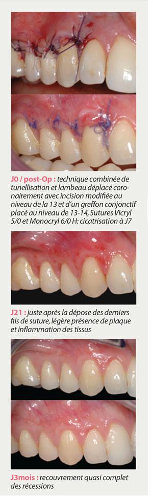 tunellisation-avec-incision-modifiee