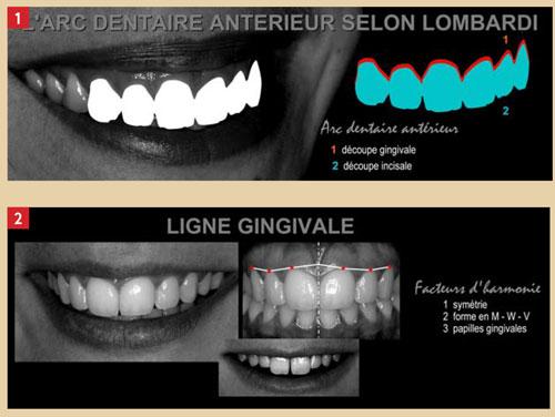 arc-dentaire-anterieur
