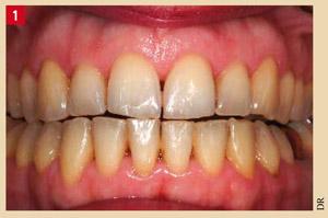 dent-jaune-homogene