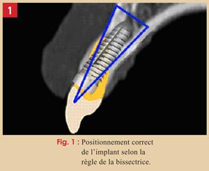positionnement-correct-de-l-implantl