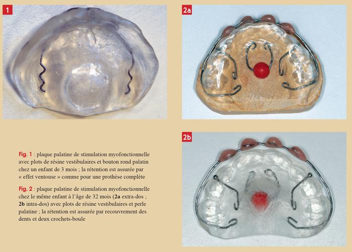 plaque-palatine