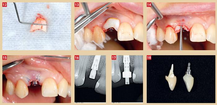 couronne-temporaire-sur-implant