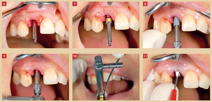 insertion-de-l-implant