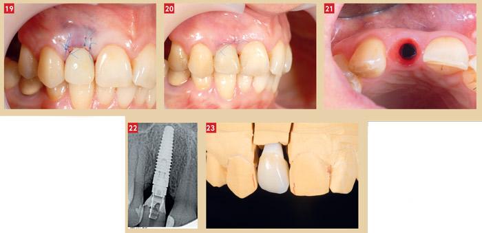 implant incisive