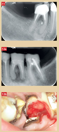 secteur-mandibulaire