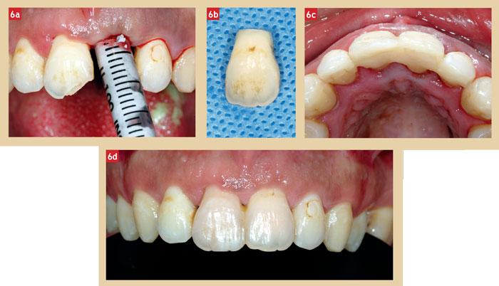 utilisation-de-la-dent-extraite