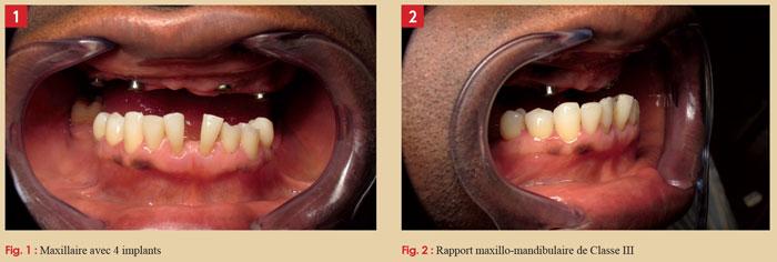 maxillaire-avec-implant