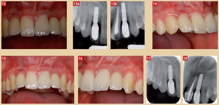 resultats-apres-chirurgie