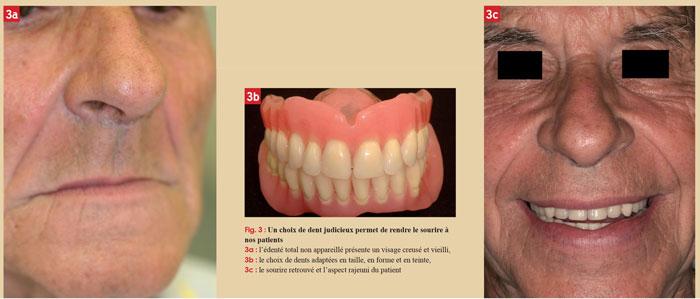 sourire-du-patient