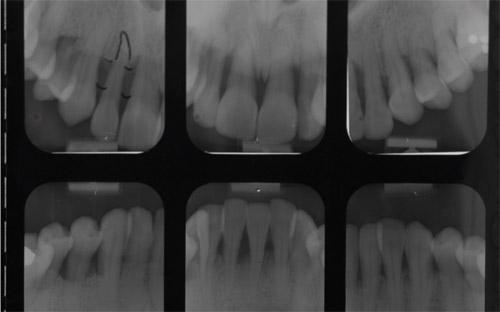 radiographie-pre-operatoire