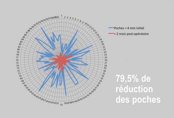 reduction-des-poches