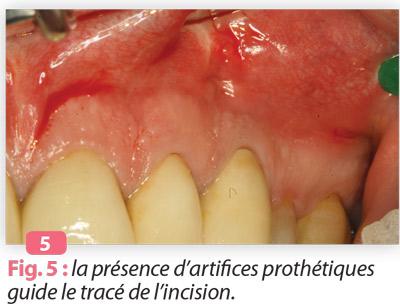 tracés-incision-endodontie