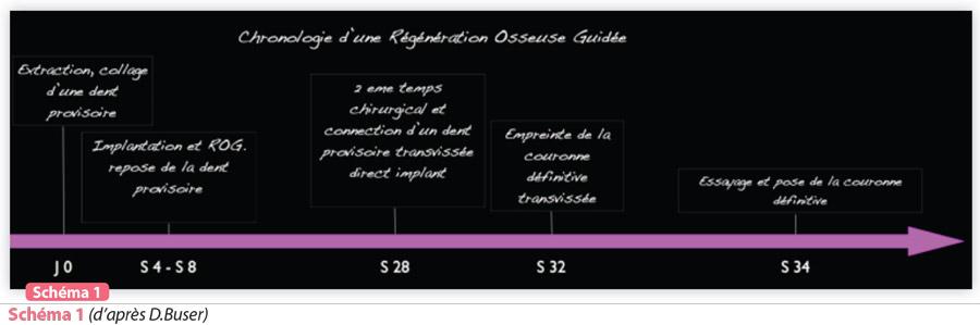 chronologie-regeneration-osseuse-guidee