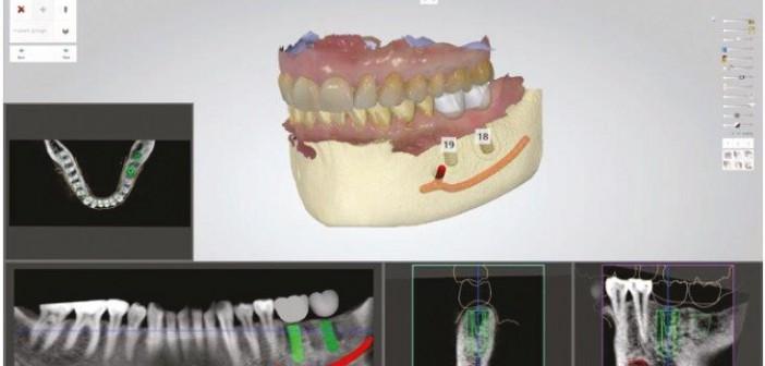 Couple empreinte optique avec panoramique 3D pour planifi cation implantaire (3Shape).